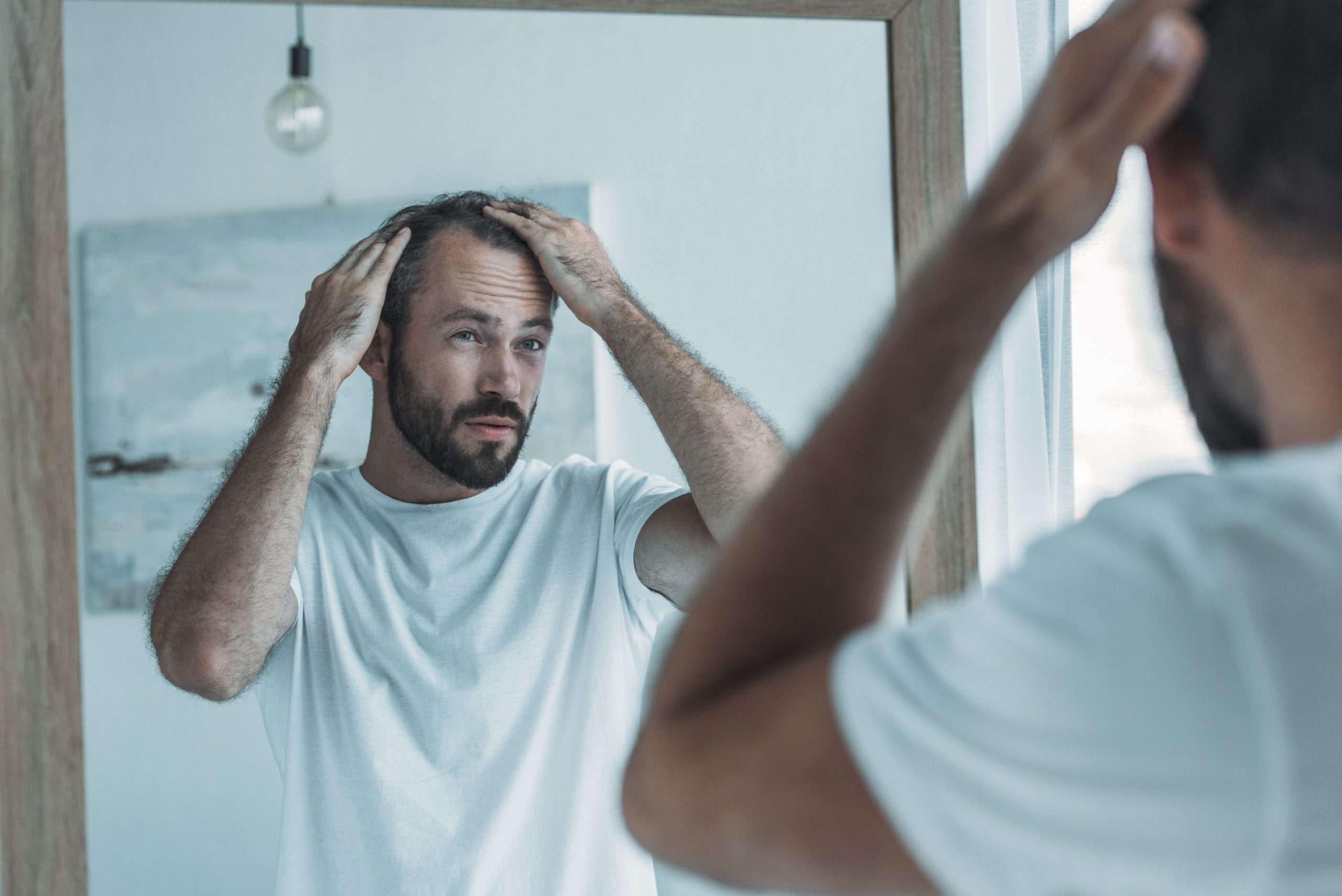 How To Avoid Hair Loss on TRT: Side Effects of Testosterone Replacement Therapy